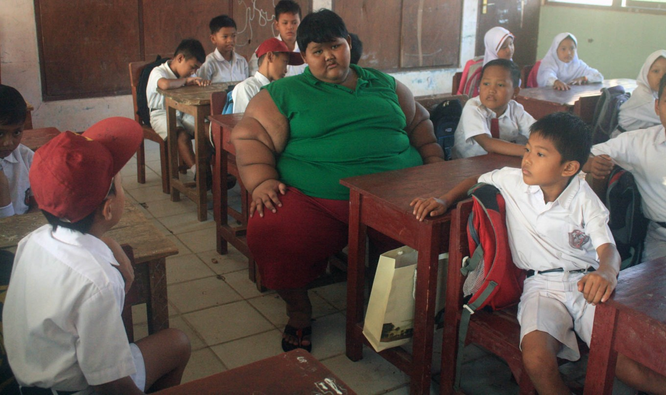 Karawang teenager to have excess skin removed after obesity treatment