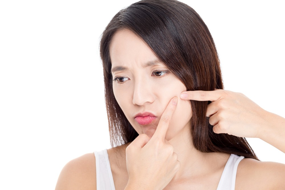 Five reasons you have adult acne