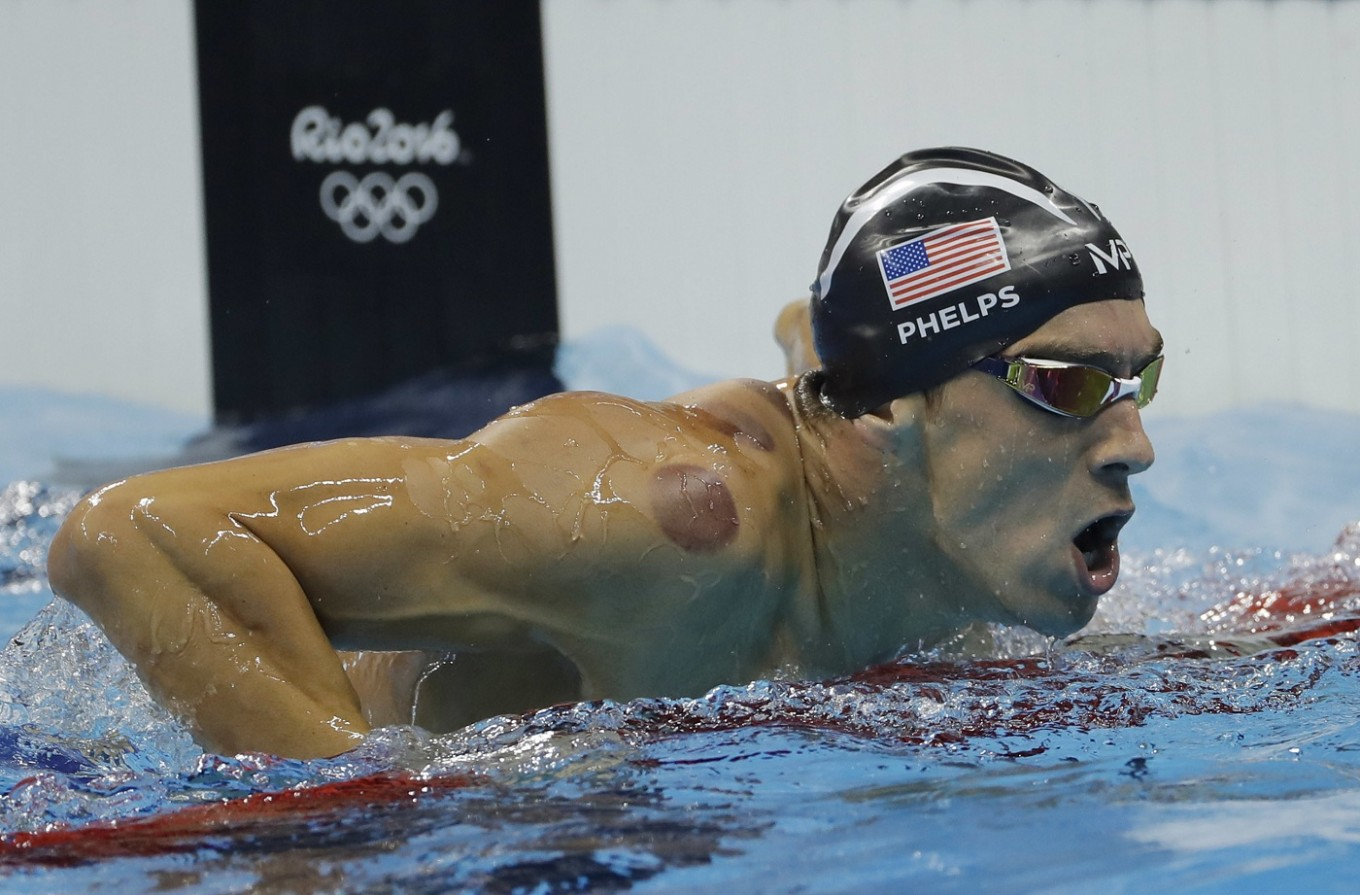 Why does Michael Phelps have purple spots on his back?