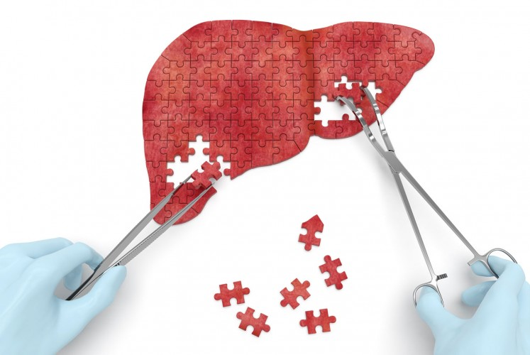 What happens in the 4 stages of liver disease - Health - The