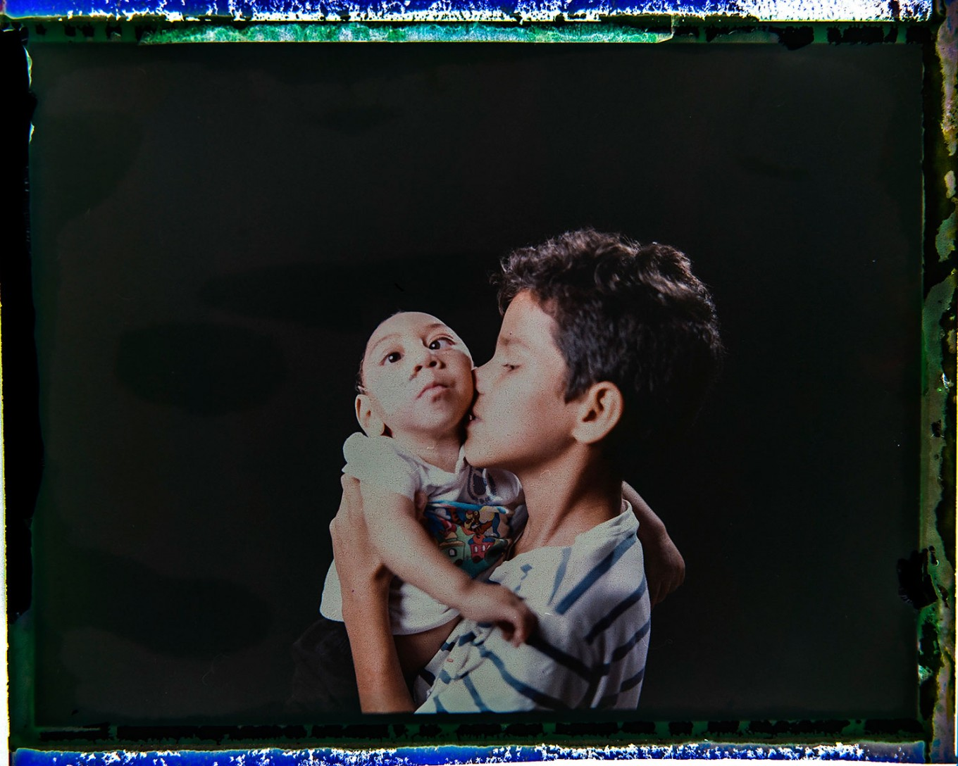 In this Sept. 27, 2016 photo made from a negative recovered from instant film, Elisson Campos poses with his 1-year-old brother, Jose Wesley Campos, who was born with microcephaly, one of many serious medical problems that can be caused by congenital Zika syndrome, in Bonito, Pernambuco state, Brazil. Elisson is very close to his baby brother and loves to hold him in his arms. AP Photo/Felipe Dana