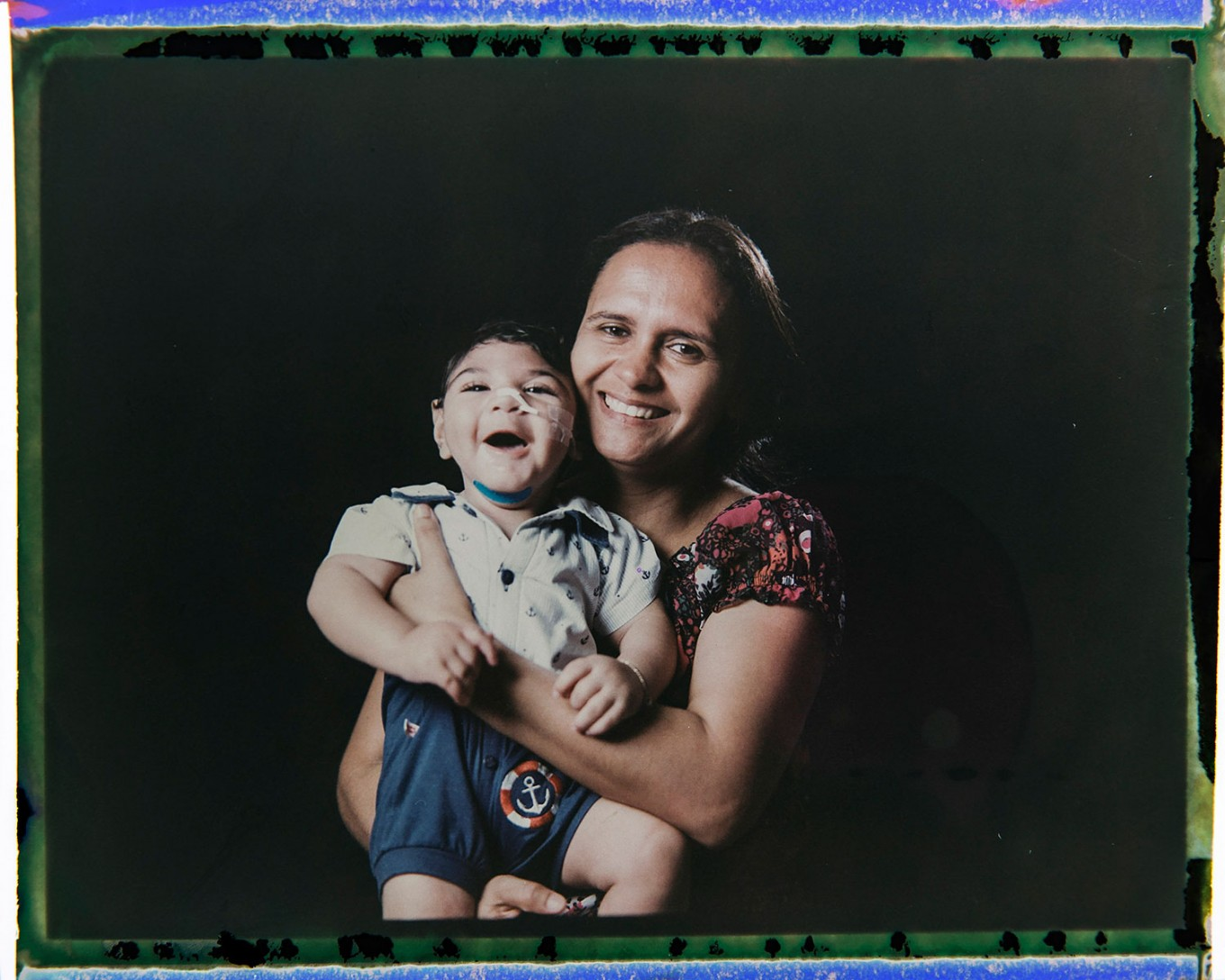 In this Sept. 29, 2016 photo made from a negative recovered from instant film, Rozilene Ferreira poses with her 1-year-old son, Arthur Conceicao, who was born with microcephaly, one of many serious medical problems that can be caused by congenital Zika syndrome, in Recife, Pernambuco state, Brazil. A year after a spike in the number of newborns with the defect known as microcephaly, Brazilian doctors and researchers have seen many of the babies develop swallowing difficulties, epileptic seizures and vision and hearing problems. AP Photo/Felipe Dana