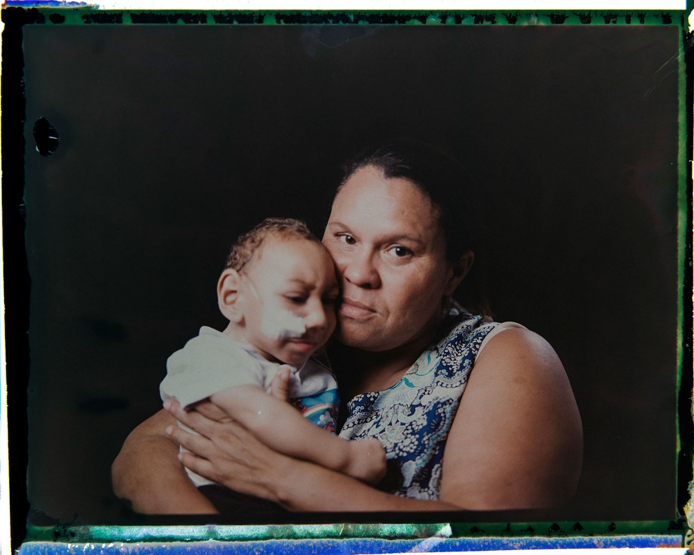 "In this Sept. 27, 2016 photo made from a negative recovered from instant film, Solange Ferreira holds her 1-year-old son Jose Wesley Campos, who was born with microcephaly, one of many serious medical problems that can be caused by congenital Zika syndrome, as they pose for a photo in Bonito, Pernambuco state, Brazil. The boy came to be known as the ""bucket baby"" because of a Dec. 23, 2015 photograph of him in a bucket filled with water to help him calm down. The image became emblematic of Brazil's Zika epidemic amid a surge of babies being born with unusually small heads in the country's northeast. AP Photo/Felipe Dana"