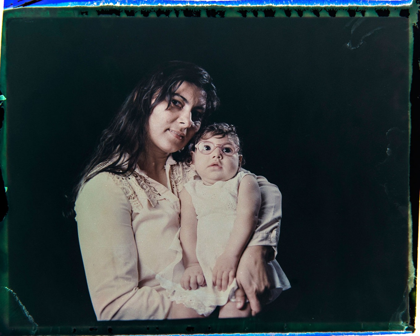 In this Sept. 29, 2016 photo made from a negative recovered from instant film, Jusikelly da Silva poses for a photo with her daughter Luhandra, who was born with microcephaly, one of many serious medical problems that can be caused by congenital Zika syndrome, in Recife, Pernambuco state, Brazil. Silva says she is desperate to get a brain scan for Luhandra, who was sitting up and eating solid foods before a seizure several months ago left her virtually motionless. AP Photo/Felipe Dana