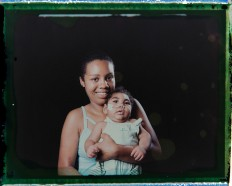 In this Sept. 29, 2016 photo made from a negative recovered from instant film, Tatiane do Nascimento holds her son Willamis Silva, who was born with microcephaly, one of many serious medical problems that can be caused by congenital Zika syndrome, as they pose for a photo in Recife, Pernambuco state, Brazil. Willamis was having swallowing problems and not gaining weight so a feeding tube was introduced, which in less than a month he pulled out a couple of times. Barbosa, who has two other children, says she used to take Williamis daily to the hospital or physical therapy, but now they are going two or three times a week. AP Photo/Felipe Dana