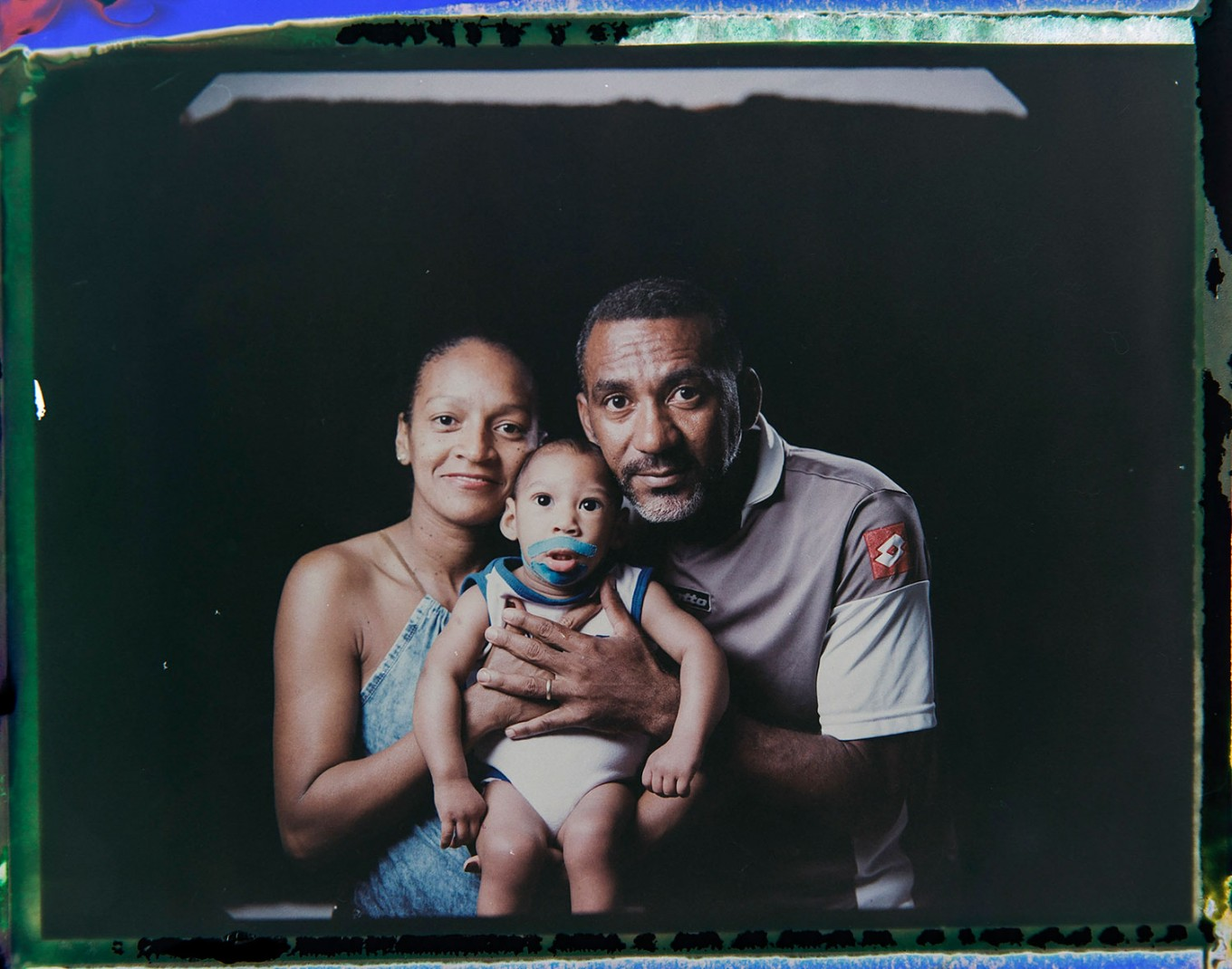 In this Sept. 29, 2016 photo made from a negative recovered from instant film, Diana Felix and Carlos Alberto Dias, pose with their son, Ezequiel, who was born with microcephaly, one of many serious medical problems that can be caused by congenital Zika syndrome, in Recife, Pernambuco state, Brazil. Dias stopped working to help Felix care for their four children. Sometimes he accompanies her to Ezequiel's therapy sessions and medical appointments, which can be as often as five times a week. AP Photo/Felipe Dana