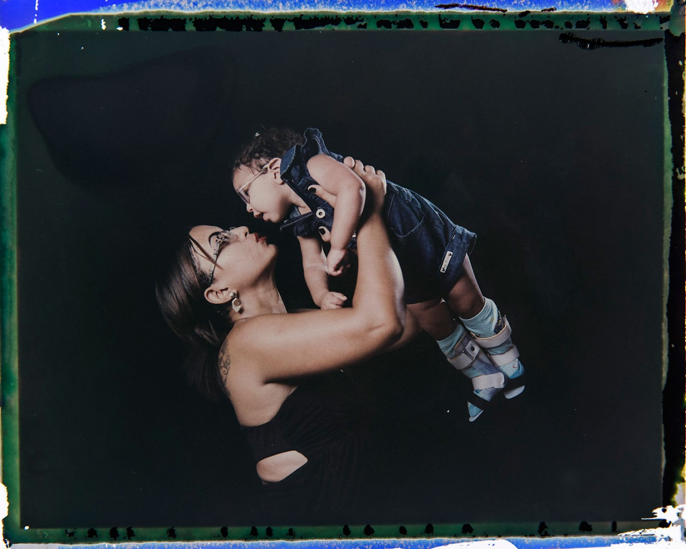 In this Sept. 29, 2016 photo made from a negative recovered from instant film, Rosana Alves holds her daughter Luana, who was born with microcephaly, one of many serious medical problems that can be caused by congenital Zika syndrome, as they pose for a photo in Recife, Pernambuco state, Brazil. Alves has three daughters and has left work to take care of Luana, who is equipped with specially designed leg braces to help position her feet. AP Photo/Felipe Dana