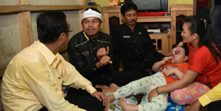 Ciamis Regent Iing Syam Arifin (left) and Purwakarta Regent Dedi Mulyadi (second left) visit Oktaviani, a 6-year-old born with a   malformed face. She is held by her mother, Tati Nurhayati (right), in Banjarsari, Ciamis, West Java.
