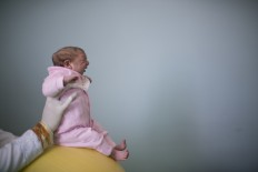 Feb. 12, 2016 file photo shows two-week-old Sophia, diagnosed with microcephaly, during a physical therapy session at the Pedro I hospital in Campina Grande, Brazil. The World Health Organization declared the Zika virus and its suspected link to birth defects an international public health emergency.