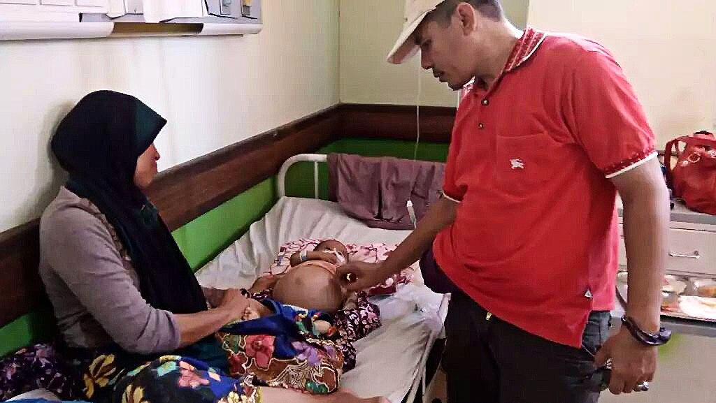 Baby 'carrying baby' to undergo surgery at NTB hospital