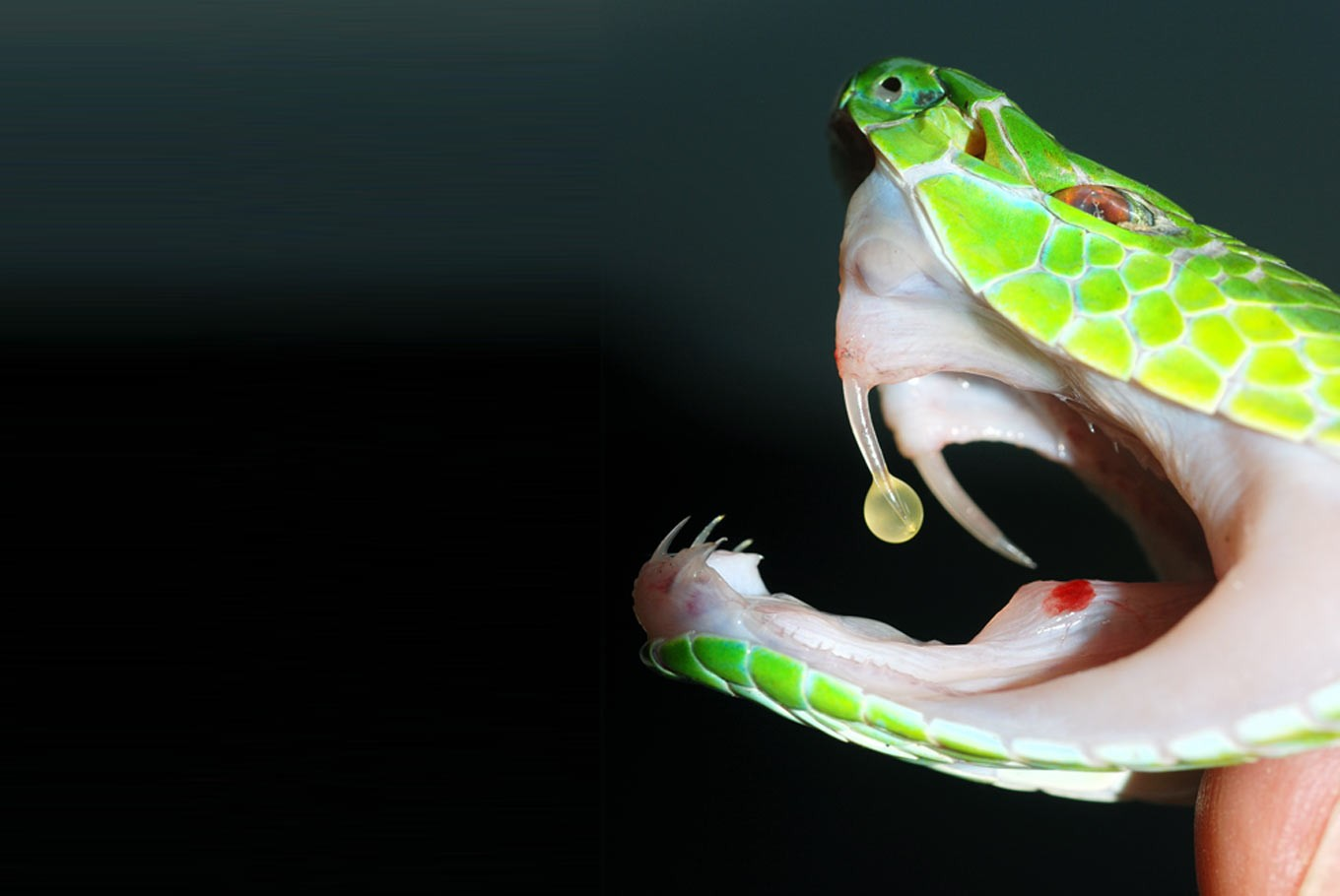 Snakebite: A 'neglected tropical disease'
