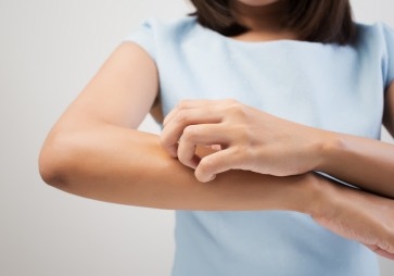 Science may have answer to the itch you shouldn't scratch