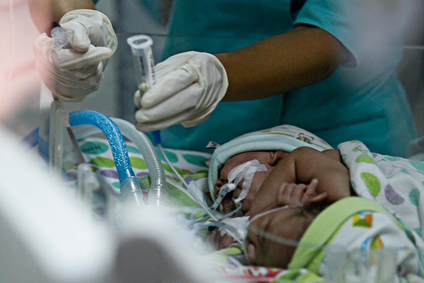 Thoraco-omphalopagus conjoined twins get intensive treatment at W. Java hospital
