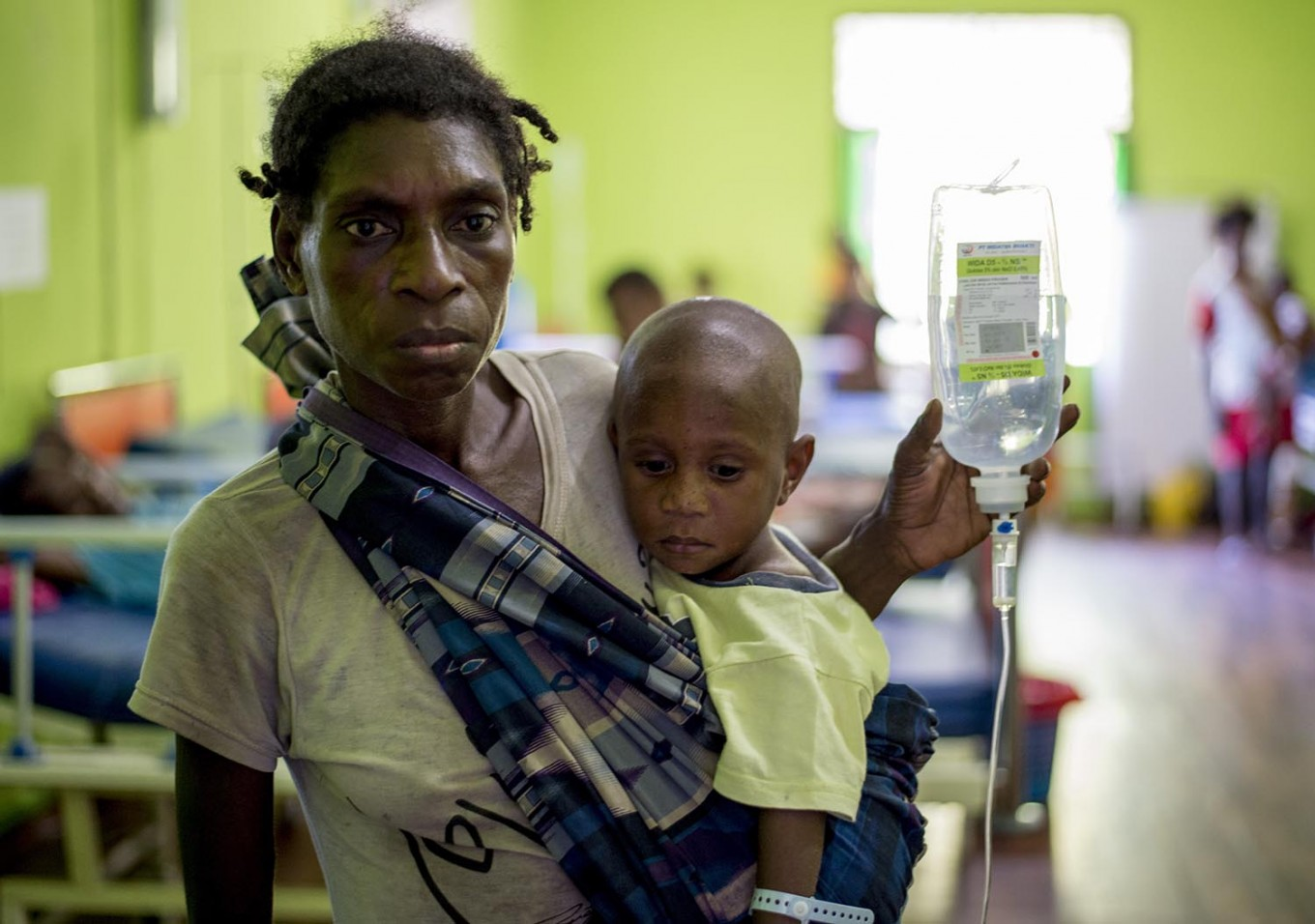 A Papuan woman carrying a drip looks on with her child at a local hospital handling measles and malnutrition patients in Agats, the capital of Asmat district in Indonesia's easternmost Papua province, on January 25, 2018. Some 800 children have been sickened by a measles-and-malnutrition outbreak in Indonesia's remote Papua province, officials said January 25, with as many as 100 people, mostly toddlers, feared to have been killed in the outbreak. AFP/ Bay Ismoyo