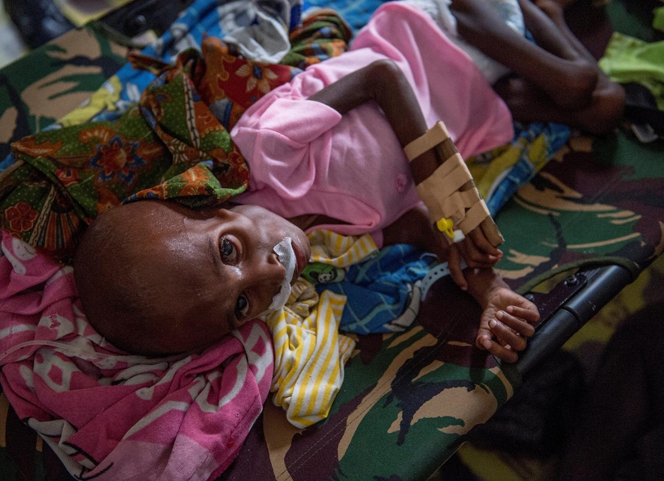 """A Papuan child suffering from malnutrition lies in a hospital bed for treatment in Agats, the capital of Asmat district in Indonesia's easternmost Papua province, on January 26, 2018. Some 800 children have been sickened in the area with as many as 100 others, mostly toddlers, feared to have died in what a military official called an """"extraordinary"""" outbreak that was first made public this month. AFP/ Bay Ismoyo"""
