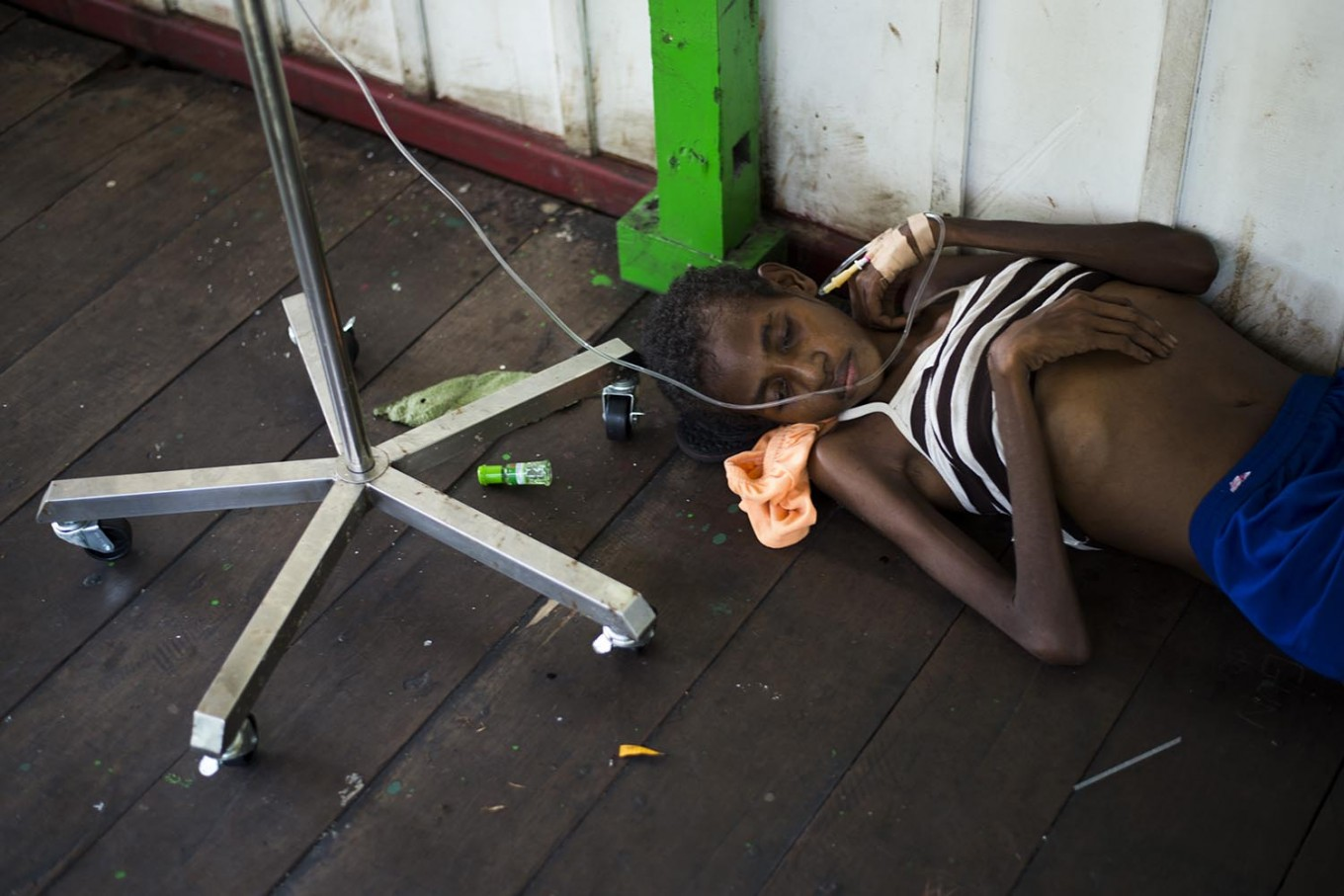 A Papuan girl on a drip lies on the bare floor of a local hospital handling measles and malnutrition patients in Agats, the capital of Asmat district in Indonesia's easternmost Papua province, on January 25, 2018. Some 800 children have been sickened by a measles-and-malnutrition outbreak in Indonesia's remote Papua province, officials said January 25, with as many as 100 people, mostly toddlers, feared to have been killed in the outbreak. AFP/ Bay Ismoyo