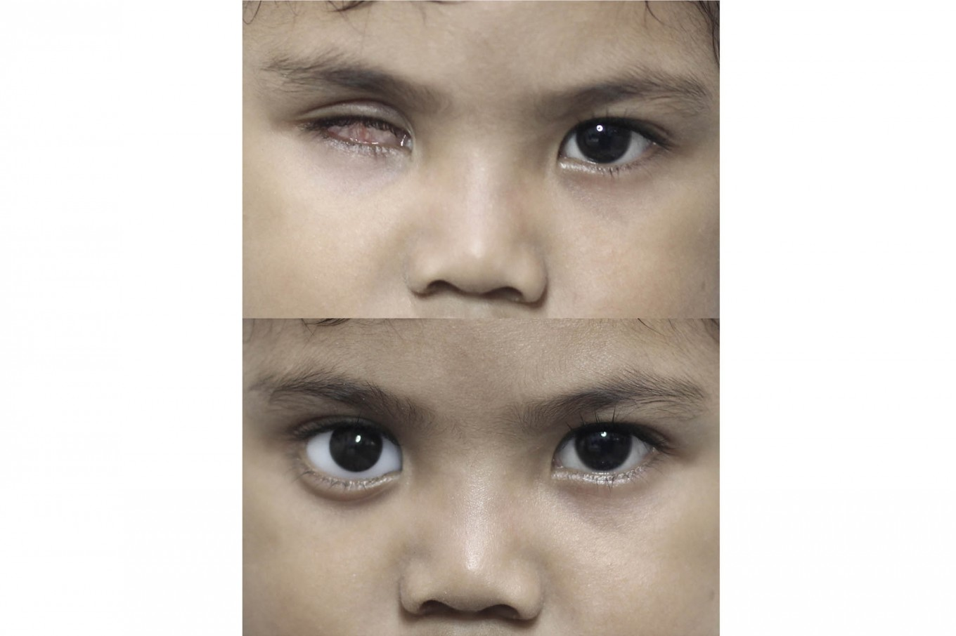 Before and after: Besta, four, was fitted with an artificial eye. JP/ Ben Latuihamallo