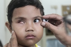 Good fit: Rizwan matches an artificial eye to Besta's original one. JP/ Ben Latuihamallo