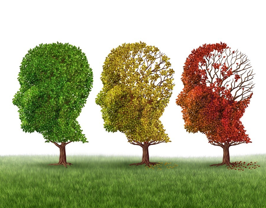First Blood Test to Diagnose Alzheimer's Disease Goes on Sale, Reports Say