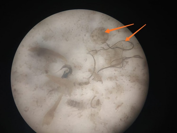 A microscopic picture of the stomach of a fish taken from the Brantas River shows the fish had ingested plastic fibers and fragments.
