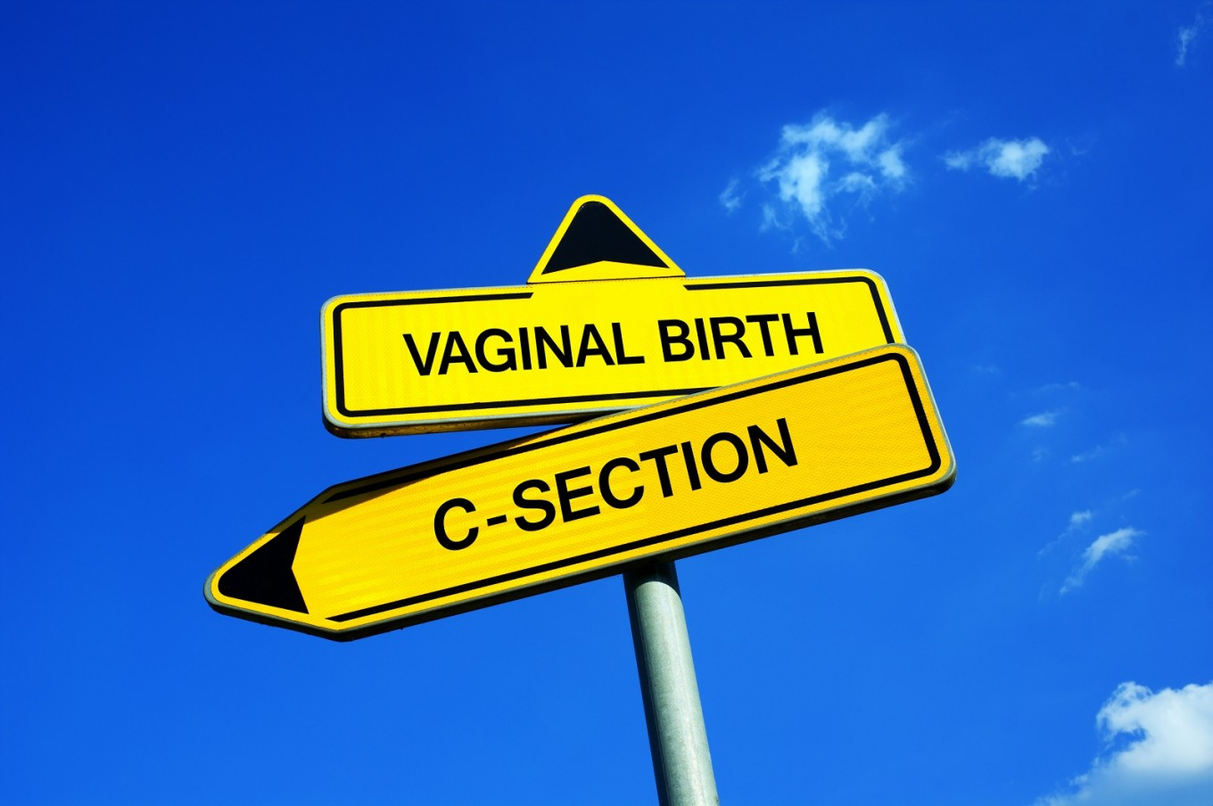 C-section births rise rapidly to more than 20 percent worldwide