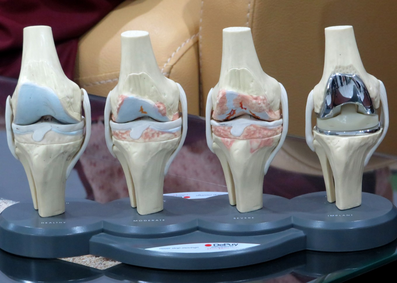 Getting to know knee injuries