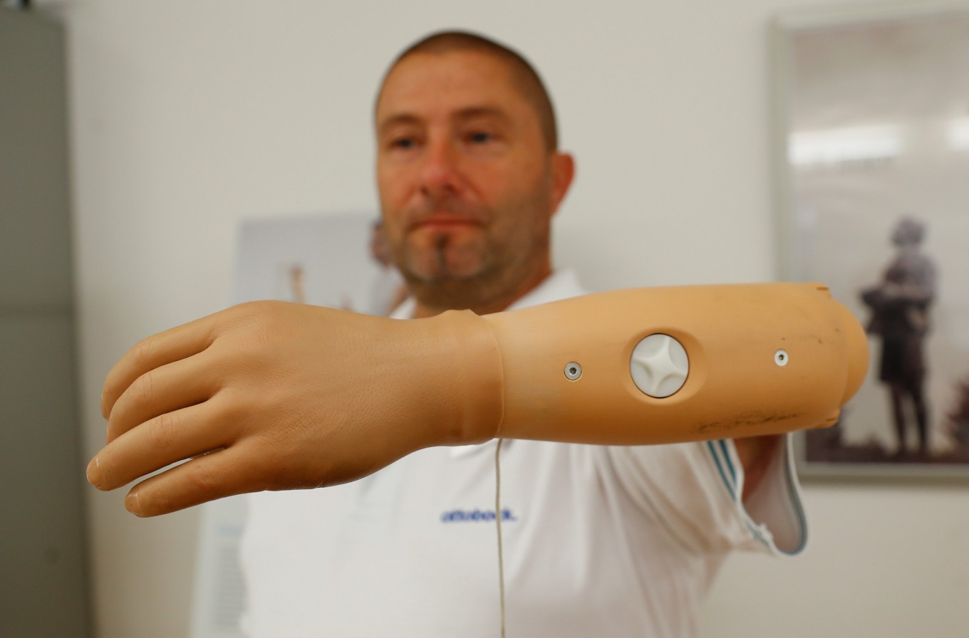 Click-on bionic arm could help amputees do the simple things
