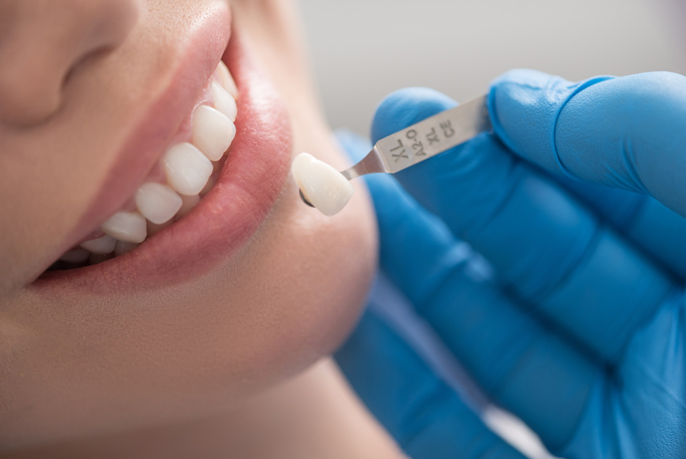 Time to be a wiser patient: Dental treatment not only about beauty