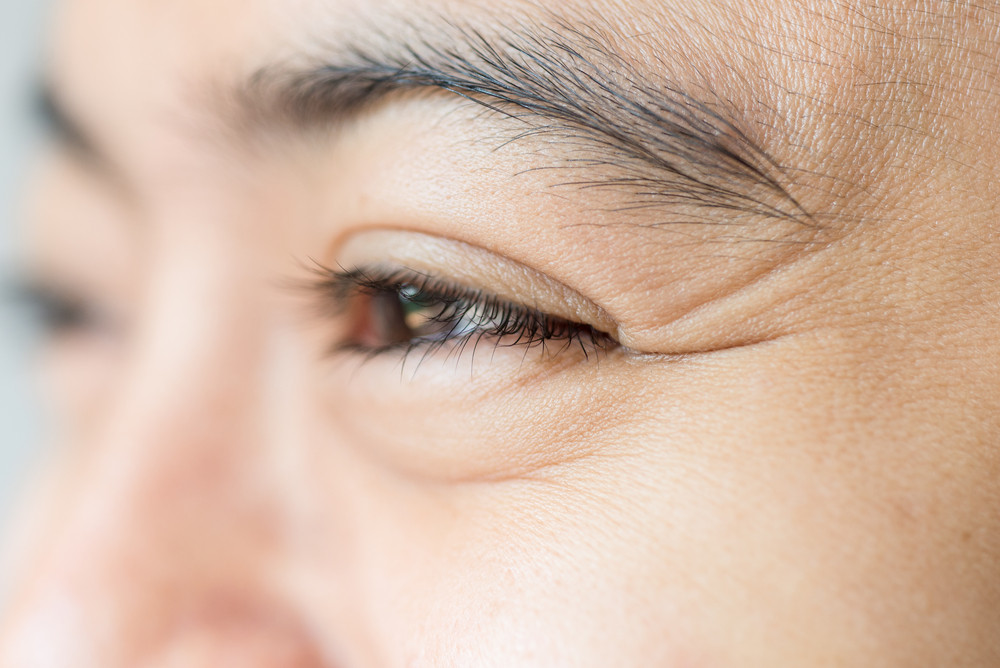 What your wrinkles say about your health