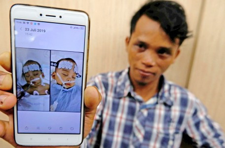 Parents grateful for successful separation of conjoined twins