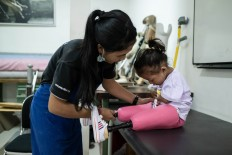 Putu helps Safitri put on her new pink prosthetic legs. JP/Agung Parameswara