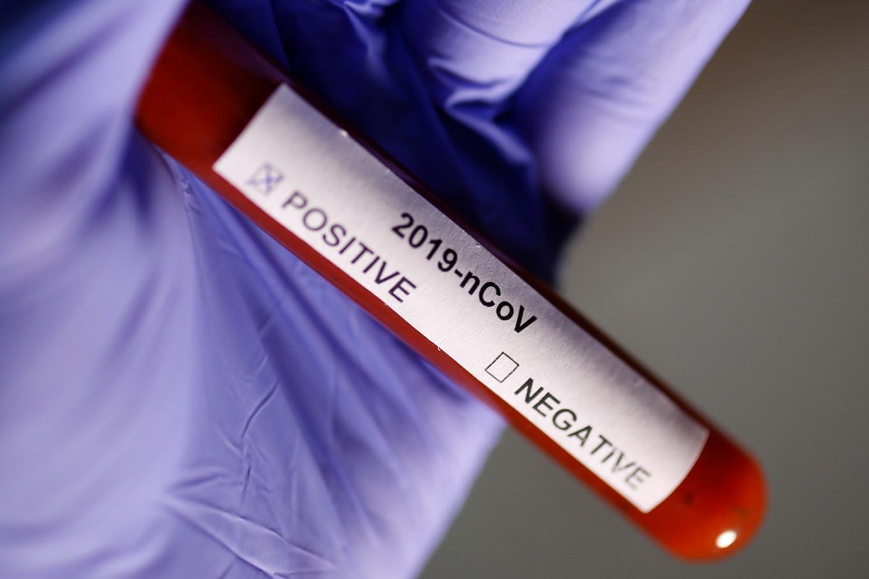 Gambia announces first coronavirus case