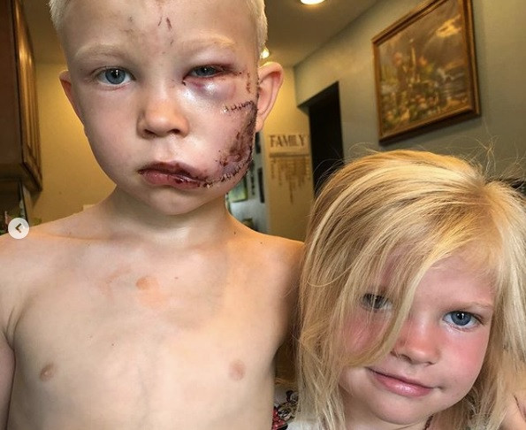 Young boy saves little sister from dog attack