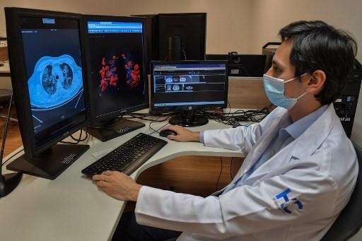 AI helps doctors fight COVID-19 in Brazil