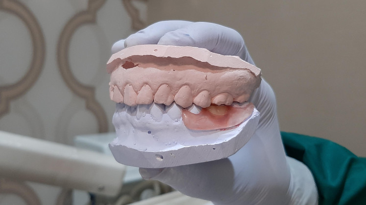 Dental model: A dentist and a special technician will first make artificial teeth based on the result of the measurement that the dentist has conducted.  The dentist then create a dental wax or plastic model in order to get a more accurate picture of the teeth.