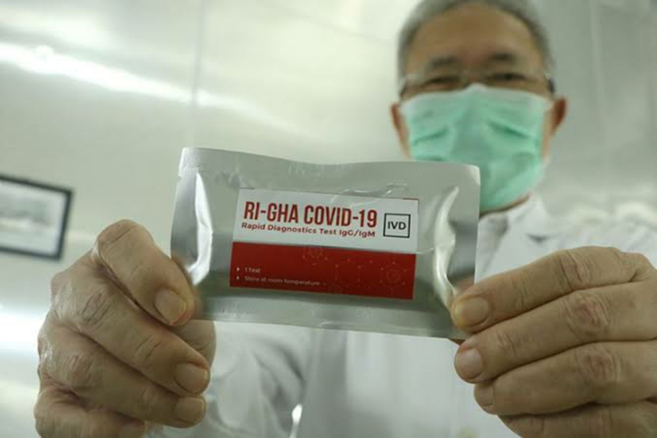 Govt, UGM to distribute 11,000 free local test kits to clamp down on COVID-19